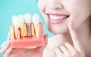 Dental Implants Have Long Been Used To Replace