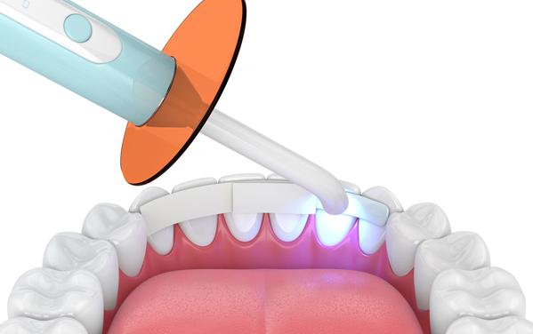 What Is Dental Bonding