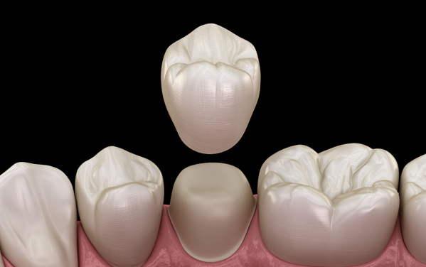 Why Might A Dental Crown Be Needed