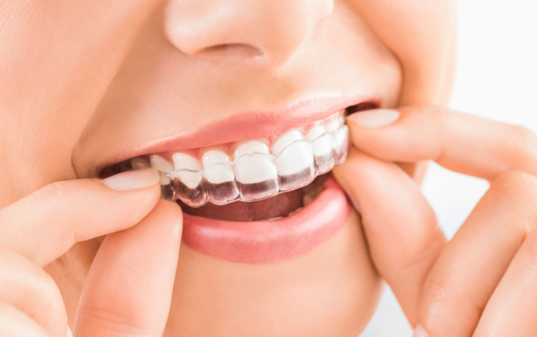 Why Would Invisalign Or Clear Aligners Be Needed