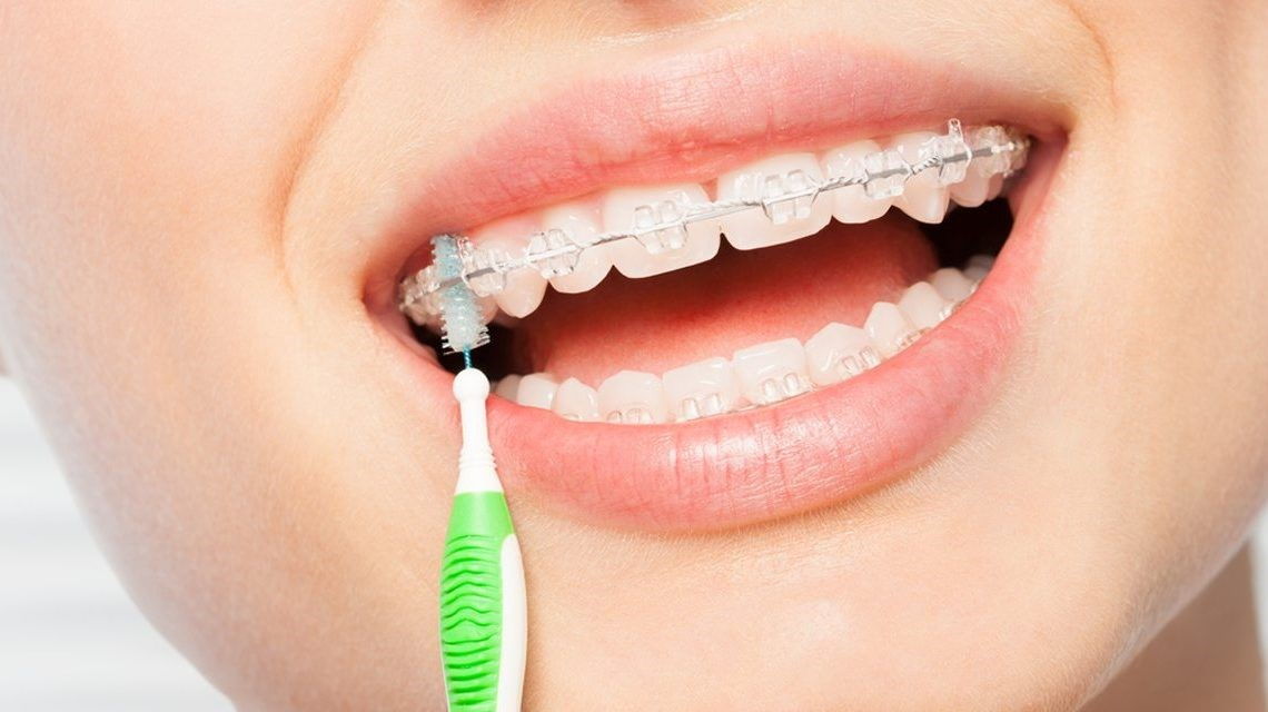 Oral Hygiene Tips With Orthodontics – Part 1 Of 2