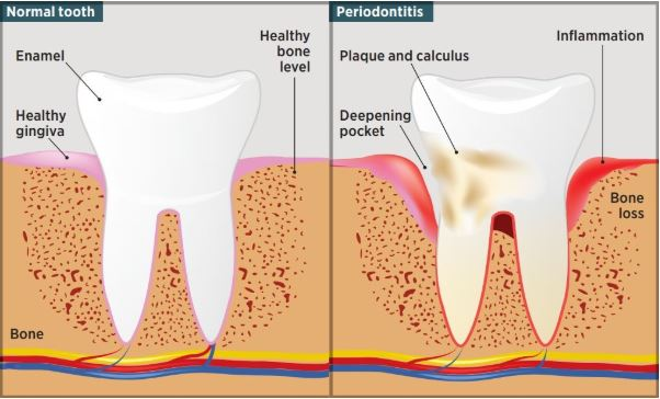 Periodontal Comparison Min