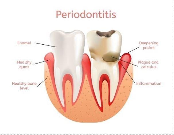 Periodontitis Min
